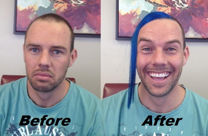 Before-after-shane