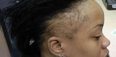 women-with-alopecia.jpg